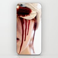 Hopeless Romantic  iPhone & iPod Skin