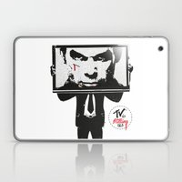 TV IS KILLING US Laptop & iPad Skin