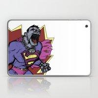 Bizarro Superman! Laptop & iPad Skin