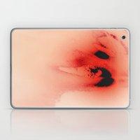 Winter Spring Laptop & iPad Skin