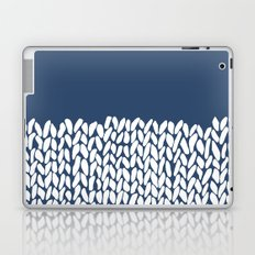 Half Knit Navy Laptop & iPad Skin