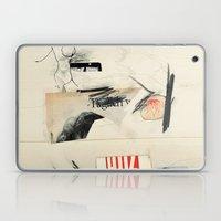 Glitz  Laptop & iPad Skin