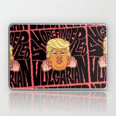 Short-Fingered Vulgarian Laptop & iPad Skin