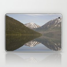 Reflections: Hourglass Laptop & iPad Skin