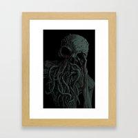 The Ache Framed Art Print
