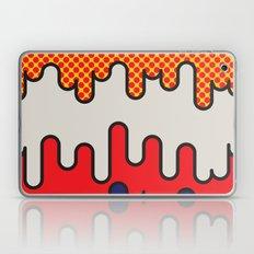 Lichtenstein Laptop & iPad Skin