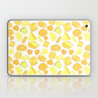 Chez Laptop & iPad Skin