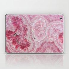 Rose Quartz Gem Laptop & iPad Skin