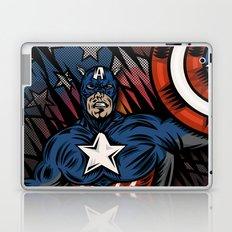 Captaino Americano Laptop & iPad Skin