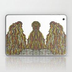 Humps! Laptop & iPad Skin