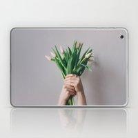Yay Tulips! Laptop & iPad Skin