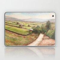 Yorkshire Farmland Laptop & iPad Skin