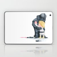 Enemies Hug I Laptop & iPad Skin