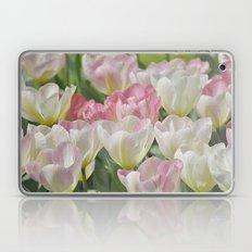 Tulpen Laptop & iPad Skin
