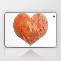 Wounds Laptop & iPad Skin