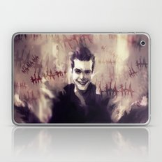 Jerome Valeska - Gotham Laptop & iPad Skin