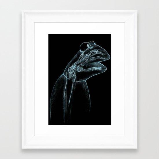 Puppet Check Up Framed Art Print