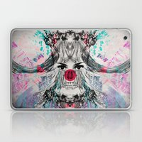 XLOVA1 Laptop & iPad Skin