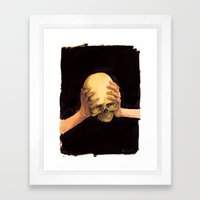 Head on Hands Framed Art Print