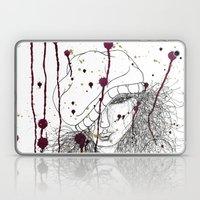 KILLA Laptop & iPad Skin