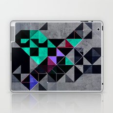 irony analyg Laptop & iPad Skin