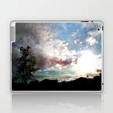 Fantasy of a Blind Reality Laptop & iPad Skin