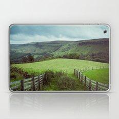 Glens of Antrim Laptop & iPad Skin