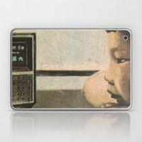 Broadcast Laptop & iPad Skin