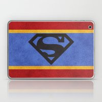 Super Colors Laptop & iPad Skin