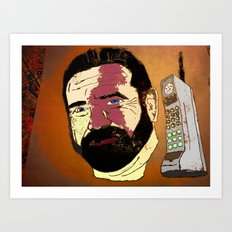 Billy Mays here calling you about my life-altering port-wine stain.  Art Print