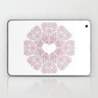 Love Lace Laptop & iPad Skin