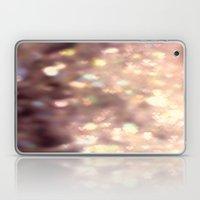 Glitters in your Heart  - JUSTART ©, digital art.    Laptop & iPad Skin