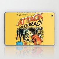 Attack Of Literacy Laptop & iPad Skin