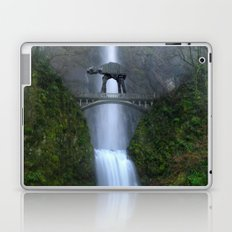 Let Nothing Stand in Our Way Laptop & iPad Skin
