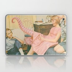 Teentacle Laptop & iPad Skin