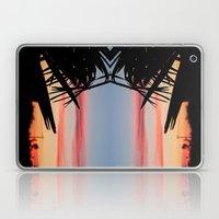 SUMMER SHADOWS Laptop & iPad Skin