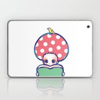 What's Special Today? Laptop & iPad Skin