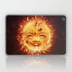 The Sun (Young Star) Laptop & iPad Skin