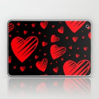 Love is Sketchy Laptop & iPad Skin