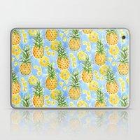Pineapple Summer Laptop & iPad Skin