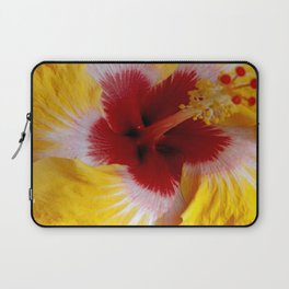 Laptop Sleeve - Yellow Burst - BeachStudio