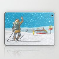 Freeze Laptop & iPad Skin