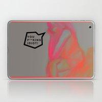 King Idiot Laptop & iPad Skin