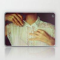 Tie Laptop & iPad Skin