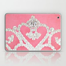 Always wear your invisible Crown Laptop & iPad Skin