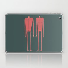 Locked Laptop & iPad Skin