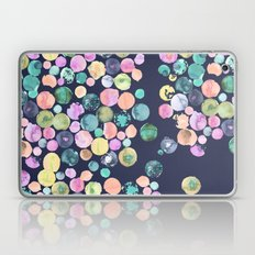 Oh No, I'm Losing my Marbles!  Laptop & iPad Skin